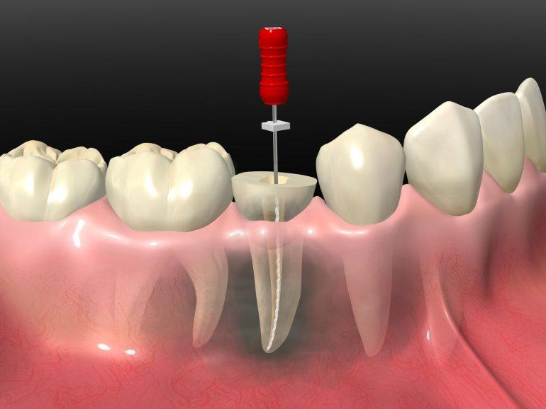 重度のむし歯には根管治療