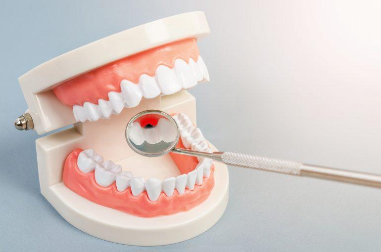 虫歯や歯周病を予防できる可能性が高まる