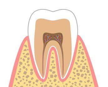 C0(ごく初期のむし歯)