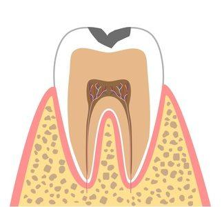C1(エナメル質のむし歯)