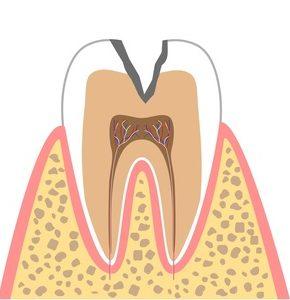 C2(象牙質に達したむし歯)