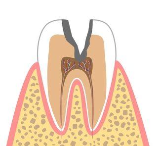 C3(神経に達したむし歯)