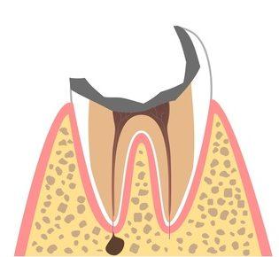 C4(歯冠の大部分が崩壊した状態)